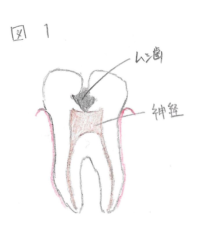 歯の画像です